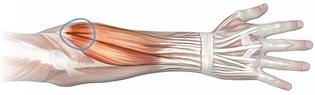 Tennis elbow, tendinite du coude ostéopathe paris 14