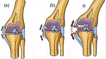 blessure entorse ostéopathe paris