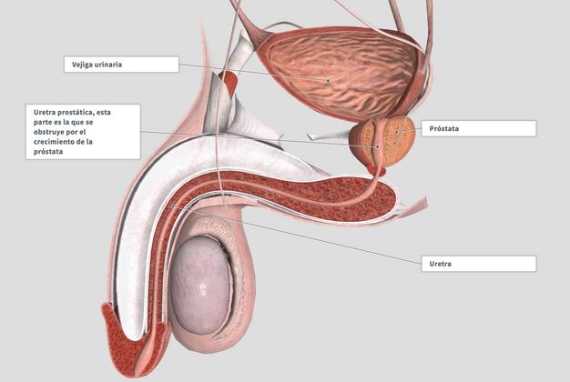 prostata 80 gramos