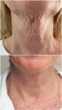 Fibrosthetics neck lift