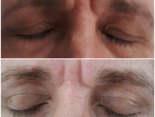 Fibrosthetics eyelid lift