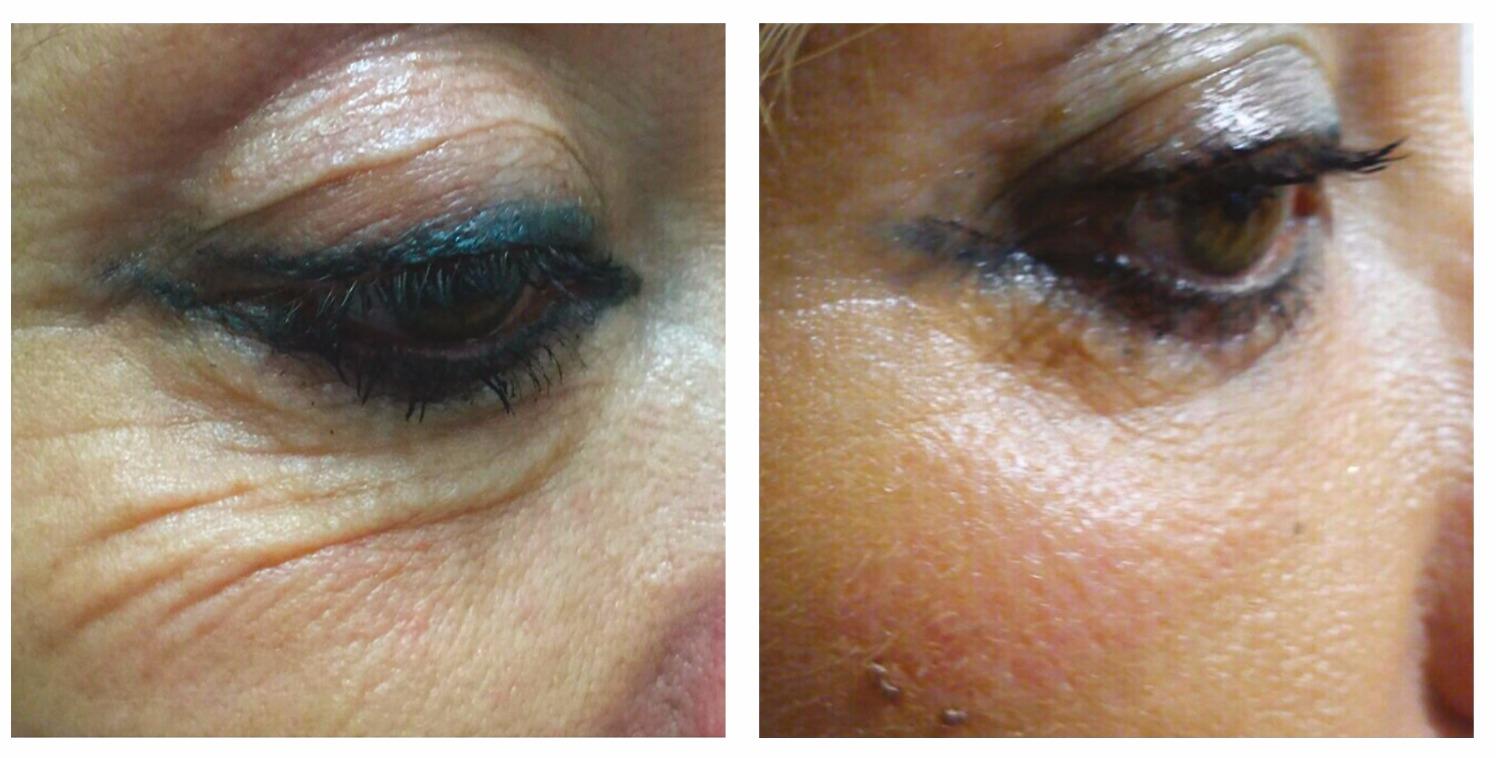 Fibrosthetics Under eye