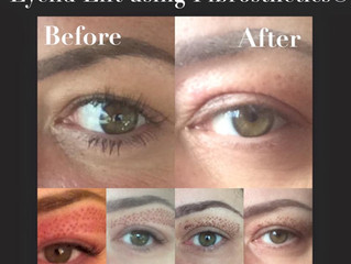 Non-surgical eyelid lift