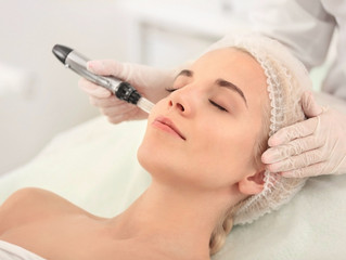Microneedling Therapy