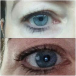 Fibrosthetics eye lift