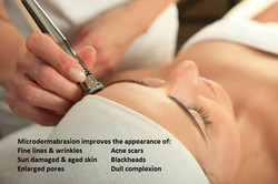 Microdermabrasion with txt3