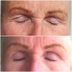 Fibrosthetics on eyelid
