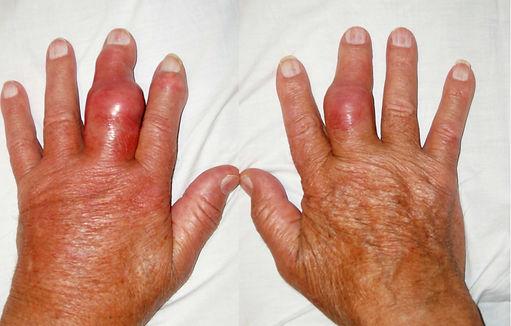 bien-chung-benh-gout