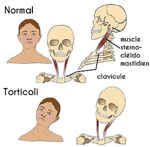 torticoli cervicalgie