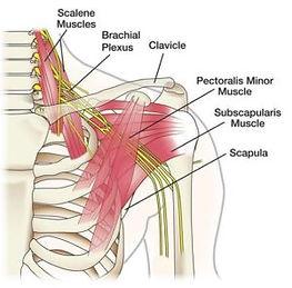 Névralgie cervic-brachiale