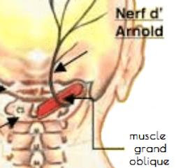 nerf d'Arnold