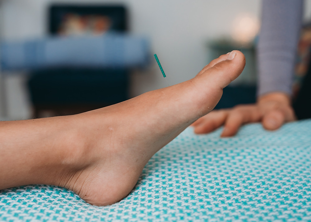Kid's foot with small acupuncture needle inserted near big toe