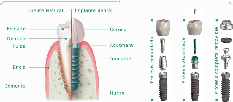 Estructura de Implantes CLINSA