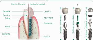 Estructura de Implantes CLINSA
