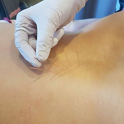 igloterapia-suche-iglowanie-dry-needling