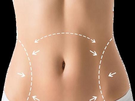Abdominoplastia: 9 dicas pré-operatórias essenciais