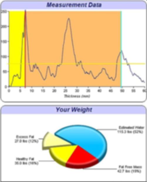 Body Compostion Testing Results - Bodymetrix/Intellimetrix