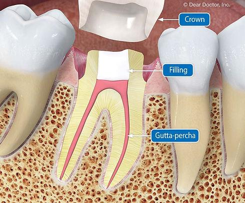 prepared-tooth.jpg