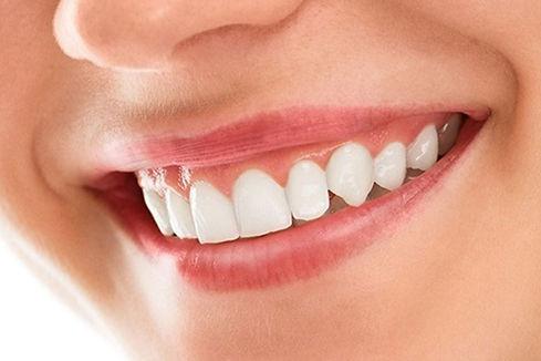Smile-makeover-1.jpg