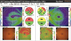 iSight OCT macular map