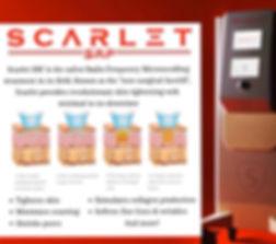 how scarlet works.jpg