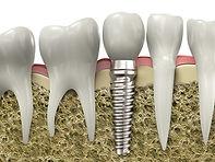 dental-implants-1200x900.jpg