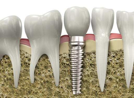 The Benefit Of Dental Implants