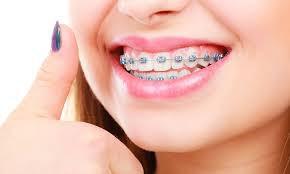 The benefits of Orthodontics