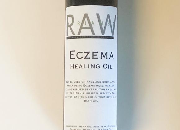 Eczema Healing Oil