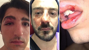 Gay Massage Clients Attacked in Paris!