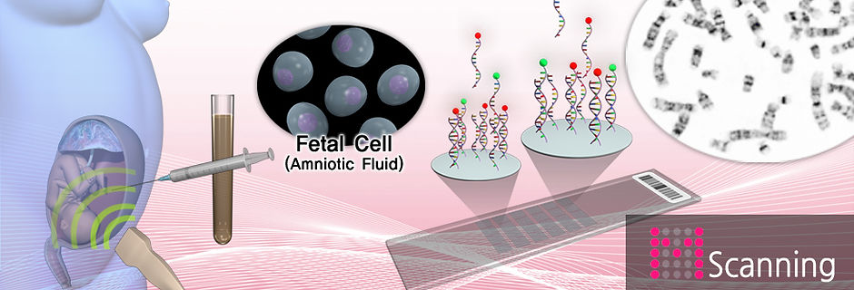 M Scanning, Fetal Cell, Amniotic Fluid