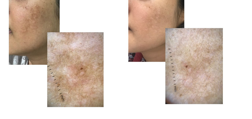 Melasma - Before/ After 5 sessions of chemical peel