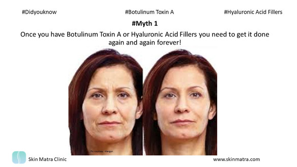 Myth 1: Once you have Botulinum Toxin A and Hyaluronic Acid Fillers you need to get it done again an