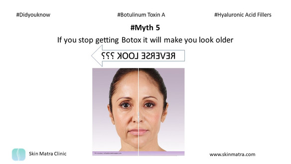 Myth 5: If you stop getting Botox it will make you look older