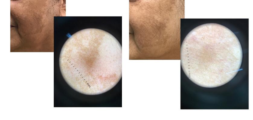 Melasma - Before/ After IPL photorejuvenation