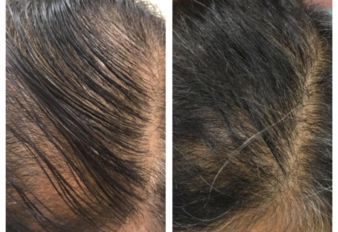 Female pattern baldness advance