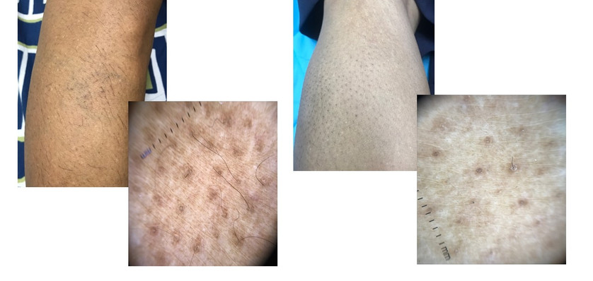 Hair in growth- before /after Laser Hair Reduction