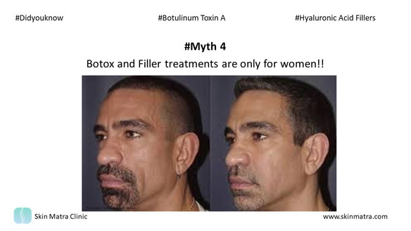 Myth 4: Botox and Filler treatments are only for women!!