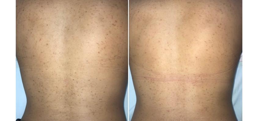 Back pigmentation