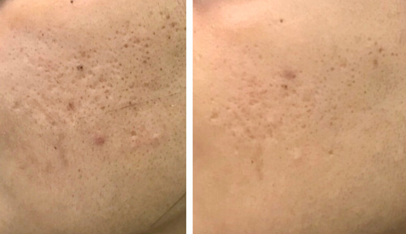 Open Pores treatment with MNRF and Laser Toning with Q-Switch Ndyag: