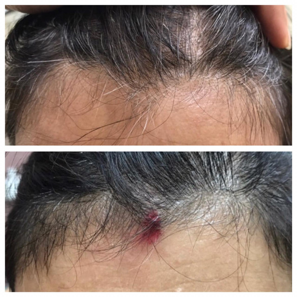 Female Pattern Hair Loss (FPHL)