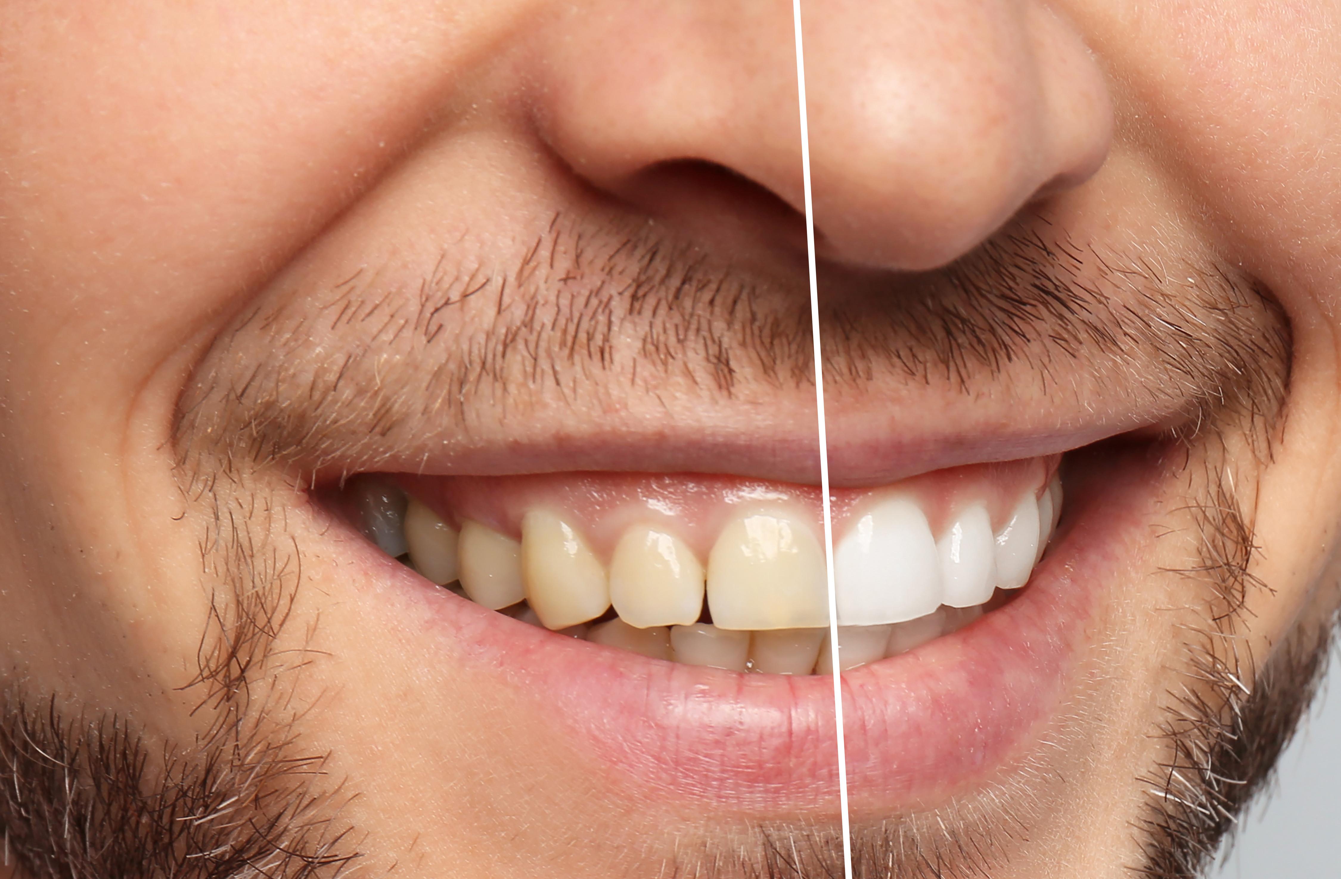 Teeth Whitening / Tandblegning
