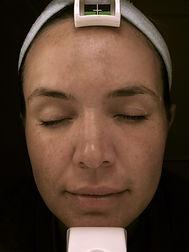 Laser Skin Care : Clear + Brilliant + You