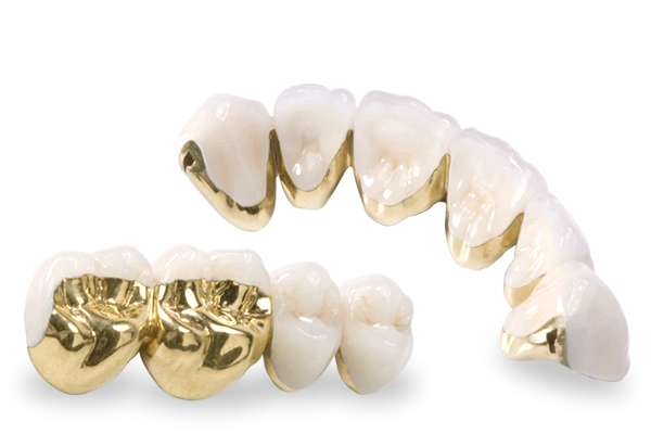 occlusal-gold
