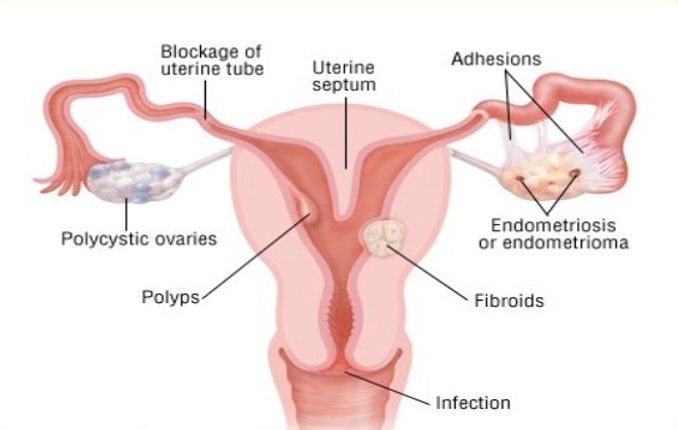how-to-approach-a-case-of-infertility-fo