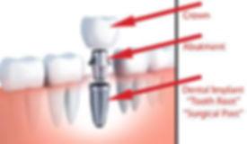 SCMimplantdiagram.jpg