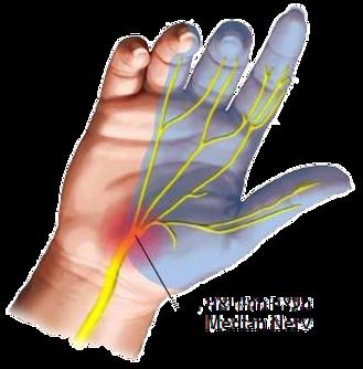 כאבים בעצם הזנב דיקור סיני