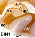 BIN1 HuBrain Mol Neurodeg.png