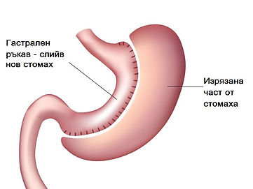 dt_141125_Sleeve_Gastrectomy_800x600.jpg
