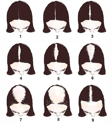 The-Ludwig-Scale-of-Womens-Hair-Loss.jpg